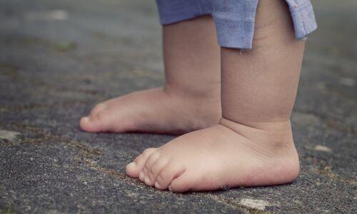 koślawość stóp u dzieci