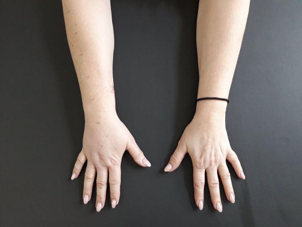 obrzęk limfatyczny ręki po masektomii